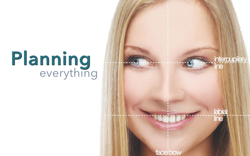 Planning your new smile