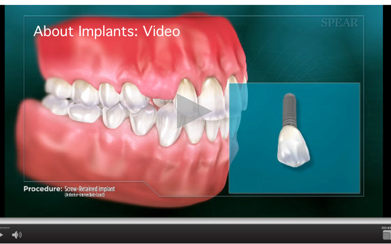 About Implants
