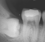 Complete impaction