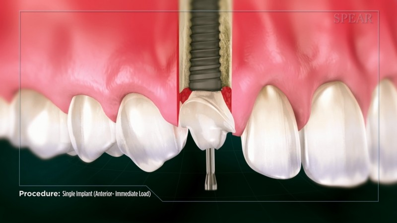 Single implant - Educational Video