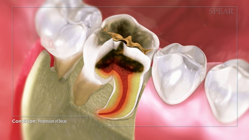Tooth Decay - Educational Video